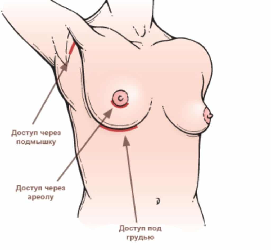 Техники проведения эндоскопической подтяжки груди