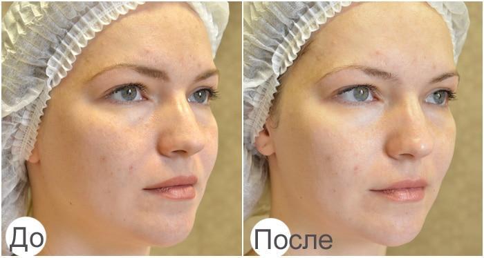 Фото до и после неинвазивной карбокситерапии