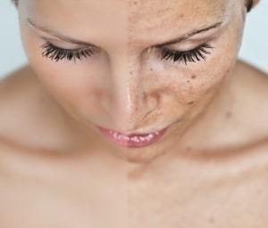 Процедура пилинга лица