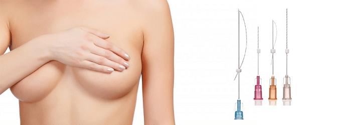Подтяжка груди нитями