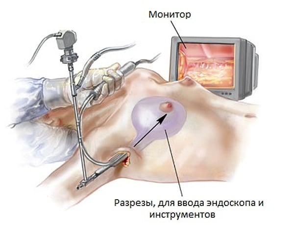 Эндоскопическое увеличение груди. Ход операции