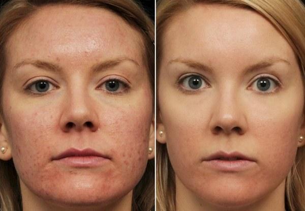 Эффект от желтого пилинга лица
