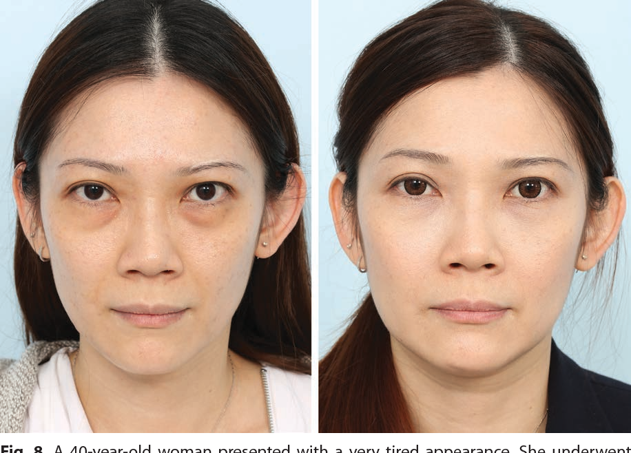 эффективность после блефаропластики нижних век фото